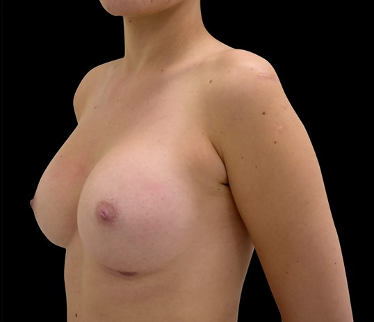 Breast Augmentation 304cc After