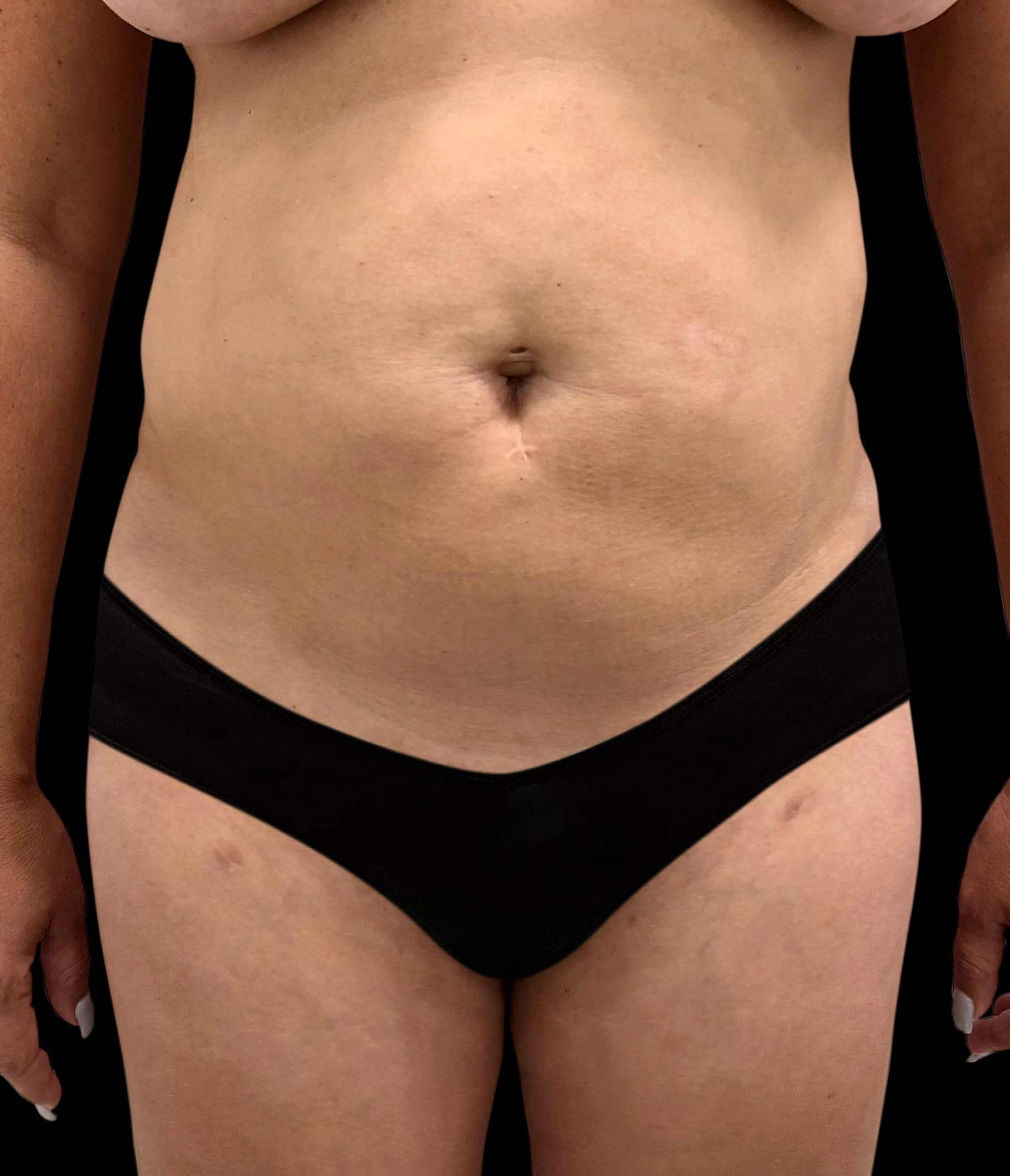 Liposuction & Skin Tightening Before