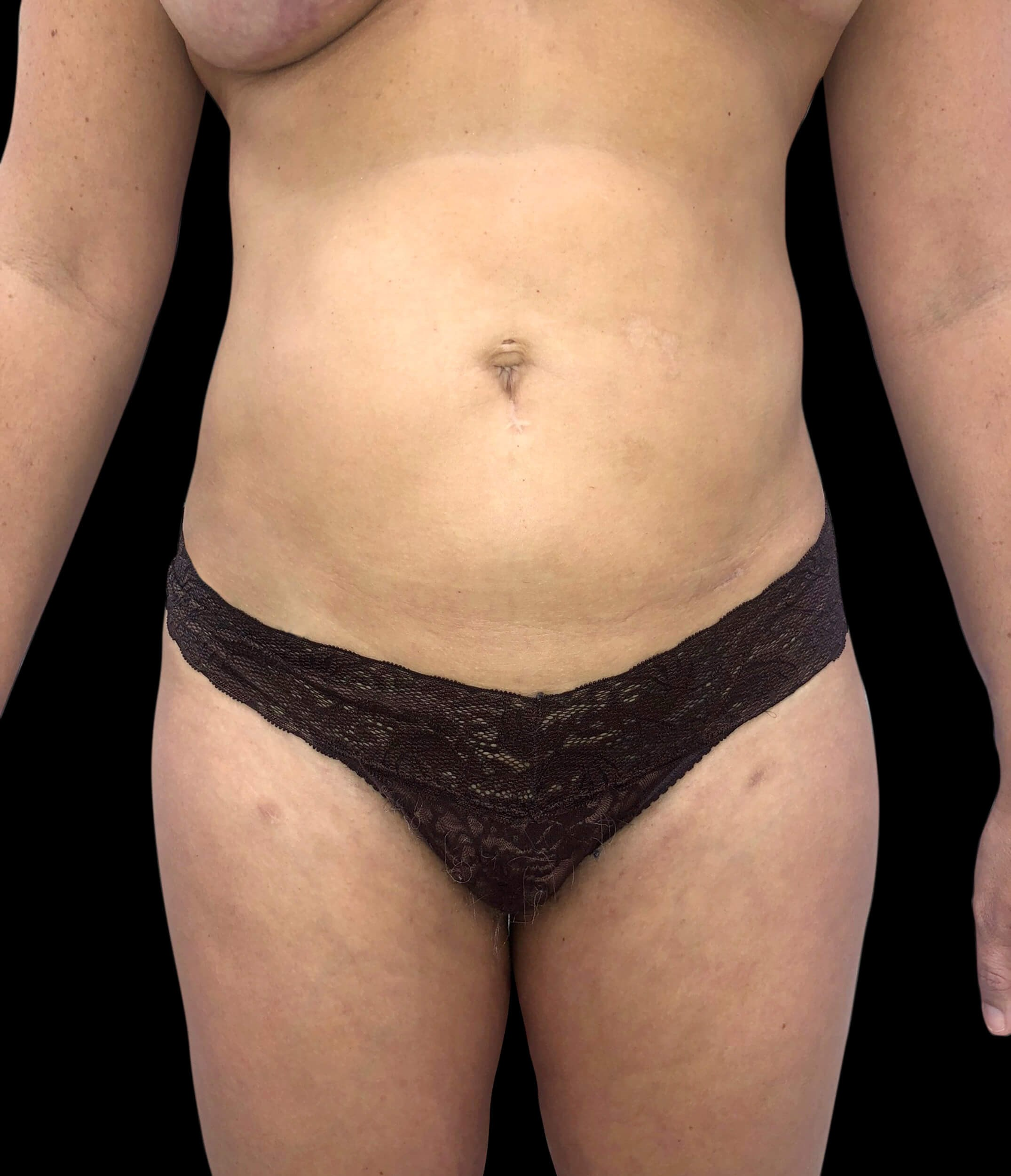 Liposuction & Skin Tightening After